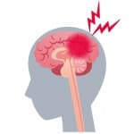 脳血管障害