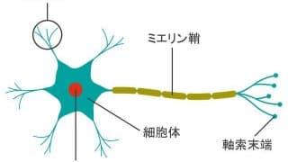 脳神経障害