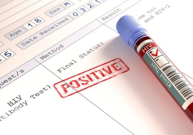 HIVに感染していても妊娠、出産は可能なの?