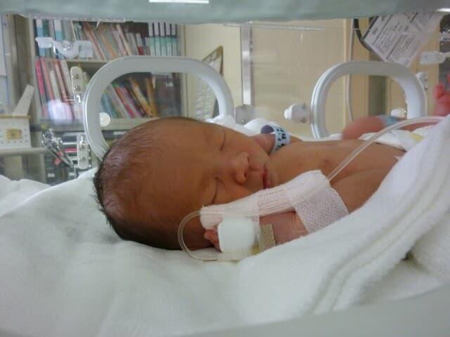 未熟児の赤ちゃん