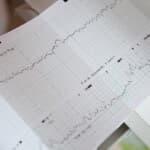 妊娠後期にするノンストレステストって何?どんなことをするの?