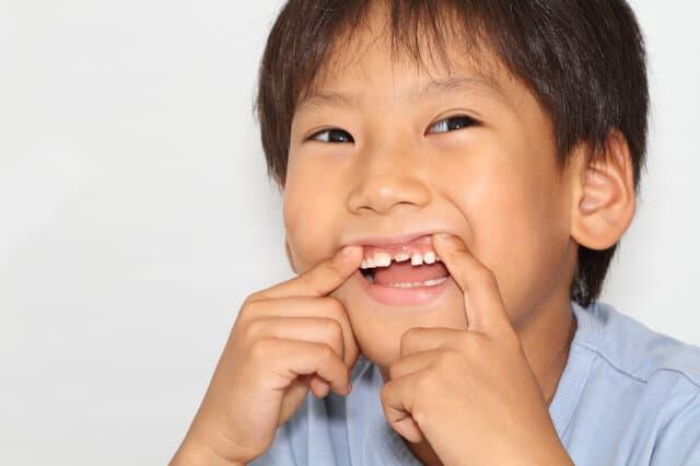 歯を見せる子ども