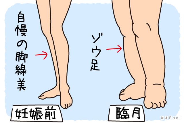 足がむくむ
