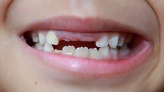 乳歯の生え変わり時期はいつ?永久歯になる前に注意したいコト