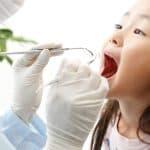 子どもの虫歯予防にシーラントが最近人気の理由